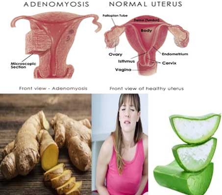 Adenomyosis- Risk factors, Symptoms, Diagnosis, Treatment, Home Remedies