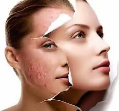 Cure Acne Scars Naturally