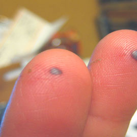 Get rid from Blood Blisters