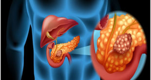 What is Pancreatic cancer