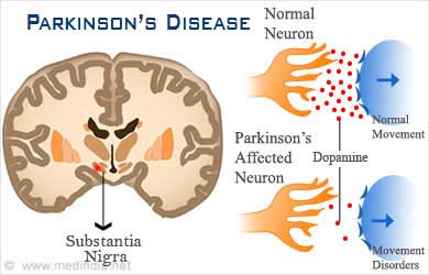 Incidence Of Parkinson's disease