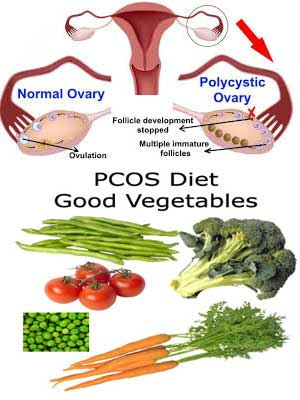 Poly cystic Ovarian Syndrome (PCOS)