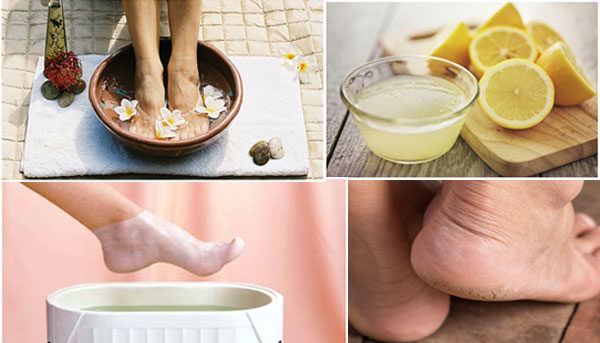 Natural and Useful Ways To Smooth Your Cracked Heels