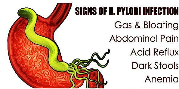 H. Pylori Common Symptoms