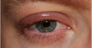 Chalazion Home Remedies