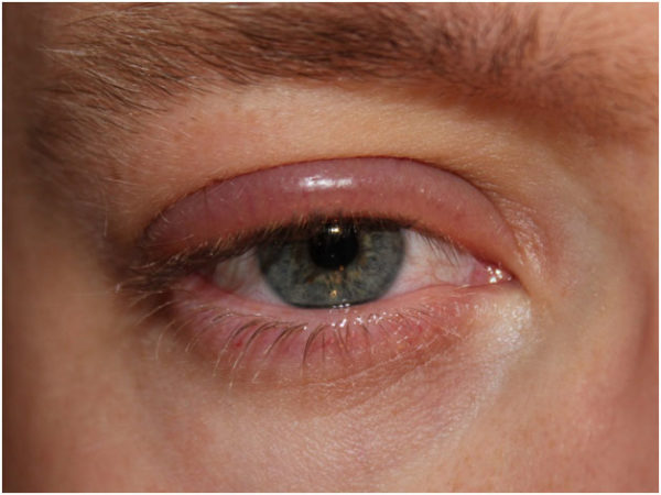 What is Chalazion