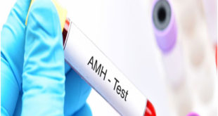 Have you heard of hormone anti-mullerian hormone test?