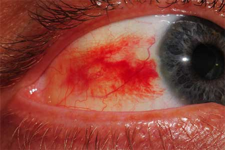 Home Remedies for Burst Blood Vessels in Eyes