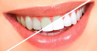 Dos and Don'ts to Brighten your Teeth