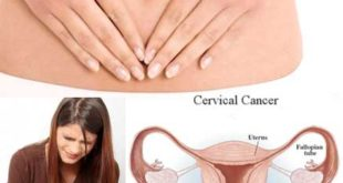 Cervical Cancer: Risk Factors, Symptoms, and Prevention