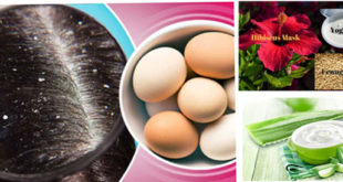 Hair Masks To Treat Dandruff Effectively At Home