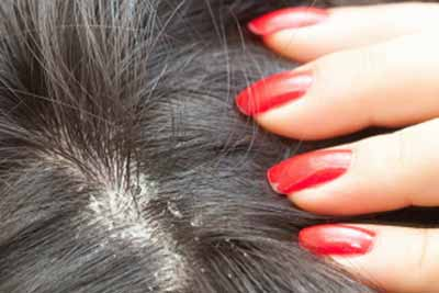 What causes dandruff and how to treat it