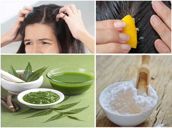 How to Treating An Itchy Scalp