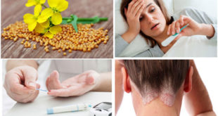 Health Benefits Of Mustard On Your Body