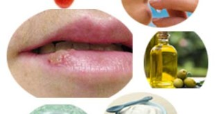 How to get Rid of Oral Herpes