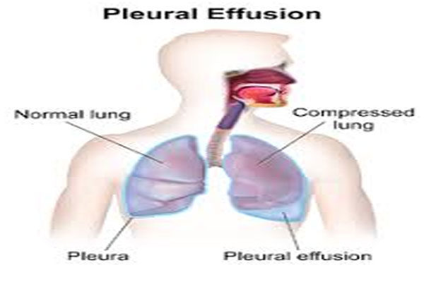 How to Reduce Pleural Effusion
