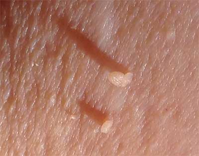 Removes skin tag and warts