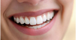 How to Get Rid of White Spots on Your Teeth