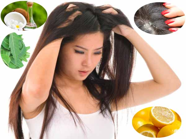 Top 12 Simple Home Remedies that work Wonders for Dandruff Treatment