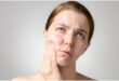 How To Treatment For Facial Tingling