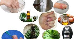 Paronychia: Types, Causes, Signs & Symptoms, Treatment & Home Remedies