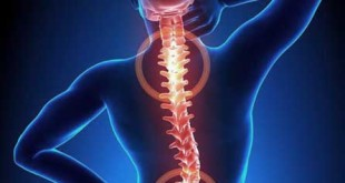 What is Back Pain:Causes, Signs and Symptoms,Risk Factors, Nature Cure